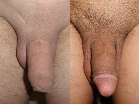 Mužská obřízka (odstranění předkožky penisu, foto)