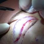Operace očního víčka - blepharoplastika